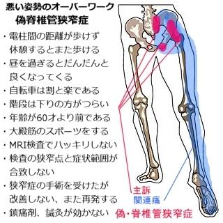 脊椎管狭窄症